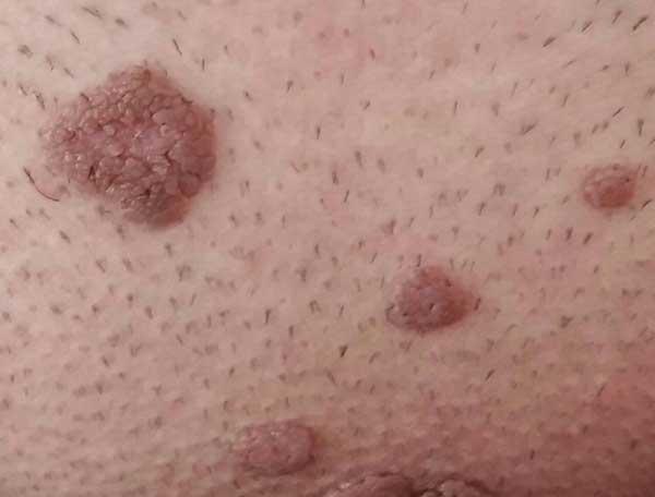 Photo of علائم زگیل تناسلی HPV در زنان و مردان