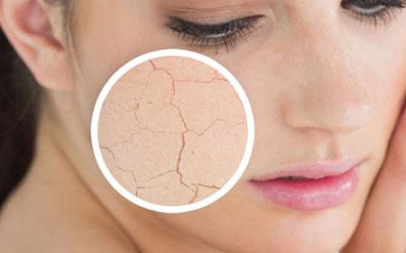 Photo of چطور پوست خشک را درمان کنیم
