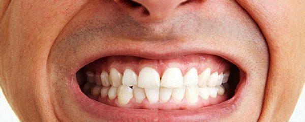 Photo of دندان قروچه چیست و چه درمانی دارد؟