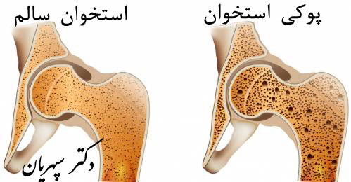 پوکی استخوان، علائم و درمان آن