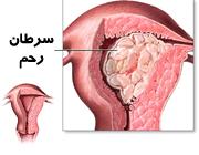 سرطان رحم شایع ترین سرطان در زنان