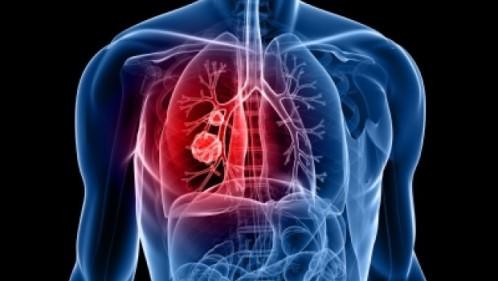 سرطان ریه و علائم و تشخیص آن
