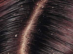 شوره سر چیست و چگونه درمان می شود؟