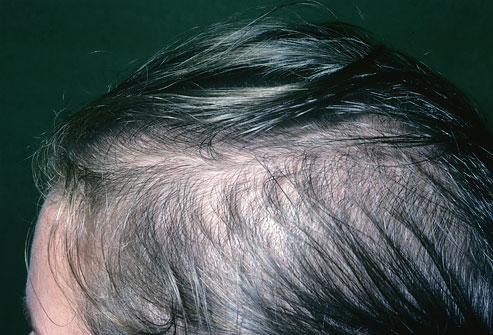آلوپسی چیست و به چه عللی ایجاد می شود؟