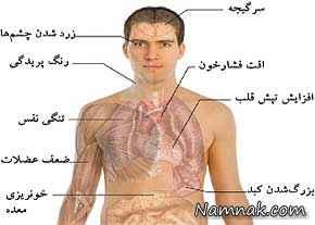 کم خونی و درمان آن