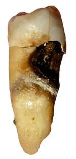 چرا دندانمان پوسیده می شود و با پوسیدگی دندان چه کنیم