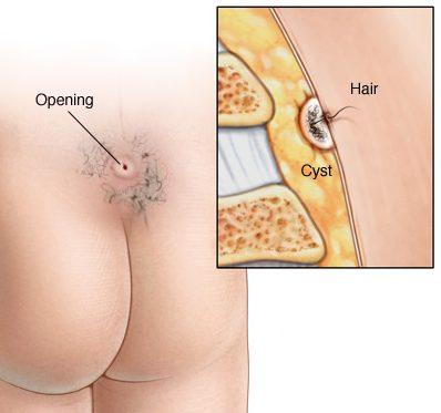 چگونه کیست مویی در پایین کمر درمان می شود؟