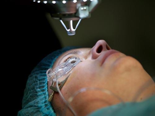از عمل جراحی لیزیک چه می دانید؟