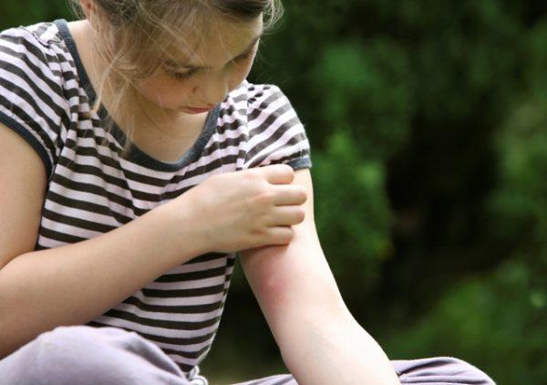 چرا پشه ها برخی از افراد را بیشتر نیش می زنند؟
