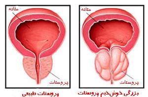 علائم بزرگ شدن پروستات در مردان