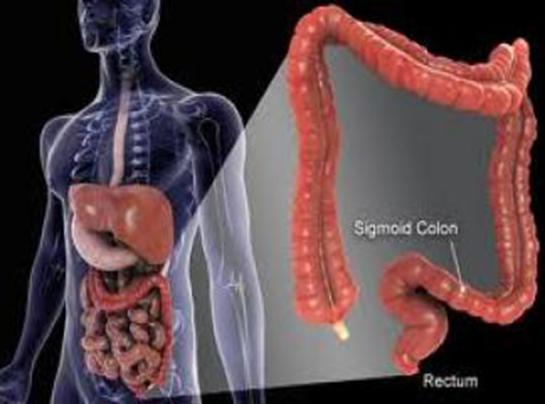 سرطان روده چه علائمی دارد؟