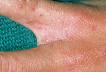Photo of از علائم تا درمان بیماری گال