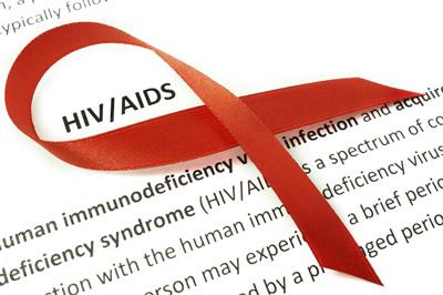 اچ آی وی چه علائمی دارد؟