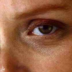 چگونه از روی چشم می توان افسردگی را تشخیص داد؟