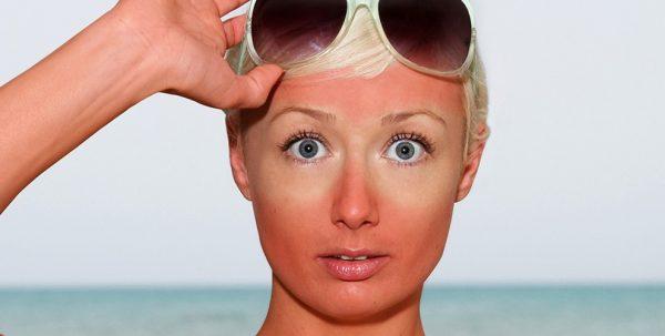 اگر دچار آفتاب سوختگی شدیم چکار باید کرد؟