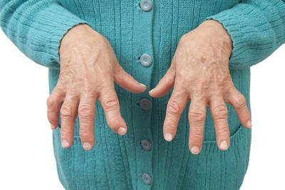 آرتریت روماتوئید چه نوع بیماری است؟