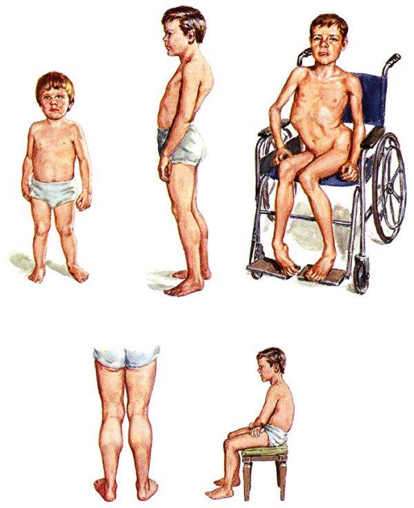 درباره دیستروفی عضلانی چه می دانیم؟