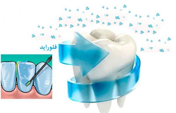 Photo of فلوراید و تأثیرات آن بر دندان
