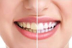 چگونه می توانیم خودمان دندانمان را جرم گیری کنیم؟