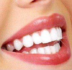 آیا برای ردیف کردن دندانها تنها راه ارتودنسی است؟