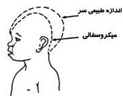 بیماری میکروسفالی و کوچک بودن سر