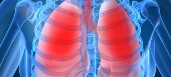 Photo of همه چیز درباره عفونت ریه که باید بدانید