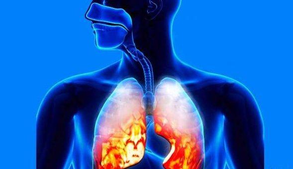 همه چیز درباره عفونت ریه که باید بدانید