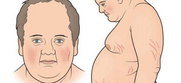 آنچه درباره سندرم کوشینگ می خواهید بدانید