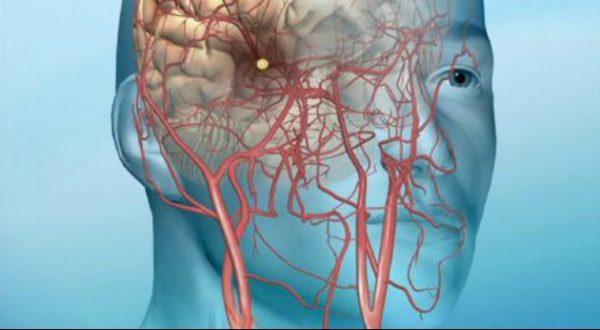 بعد از سکته مغزی چه اتفاقی می افتد