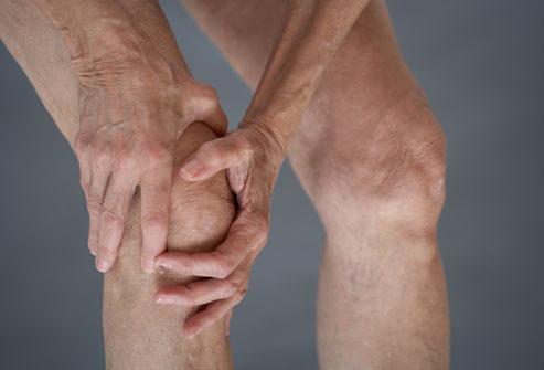 بیماری استئوآرتریت چیست؟