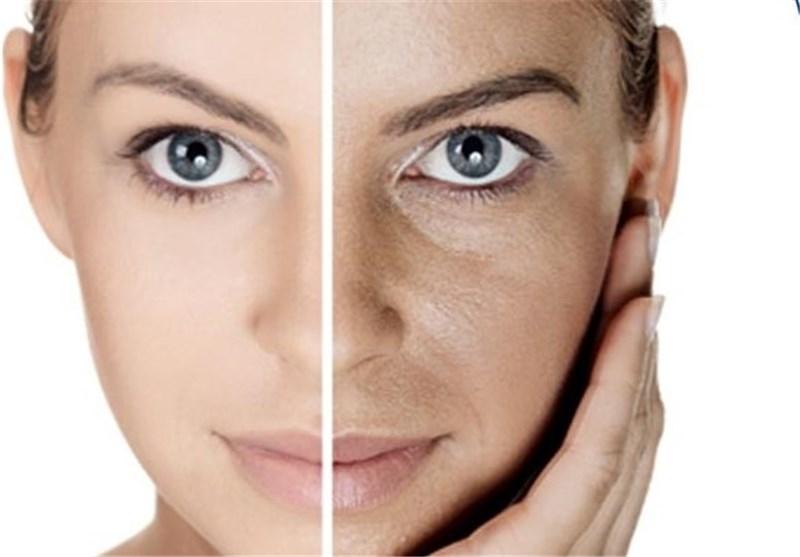 Photo of اگزمای پوستی چیست و چه کسانی مبتلا می شوند؟
