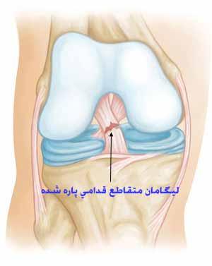 آسیب و پارگی رباط صلیبی قدامی ACL در مفصل زانو علائم و درمان آن
