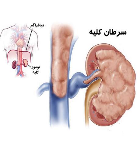 نشانه های سرطان کلیه