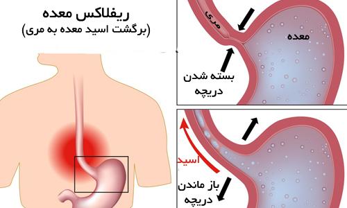 رفلاکس معده یا برگشت اسیده از معده به مری و درمان آن