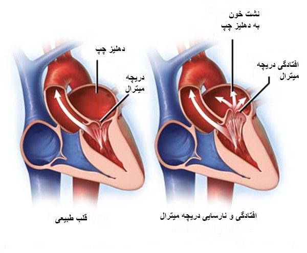 Photo of وظیفه دریچه میترال قلب چیست؟