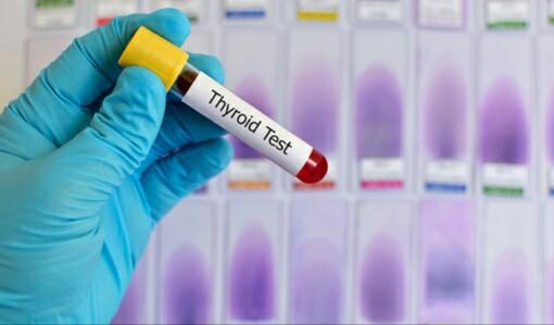 Photo of رنج نرمال TSH در آزمایش چه عددی است؟