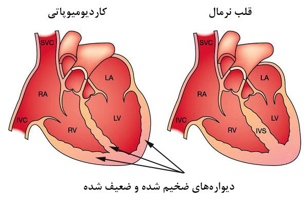 چرا عضله قلب ضخیم میشود