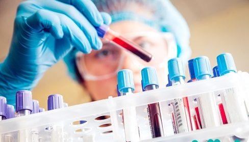 نگرانی در مورد مقاوم شدن داروهای ایدز