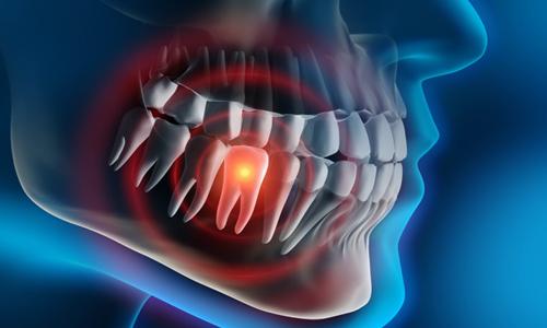 درد معده به دلیل دندان خراب