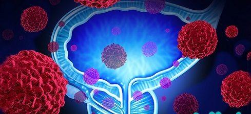 داشتن رابطه جنسی با وجود سرطان پروستات