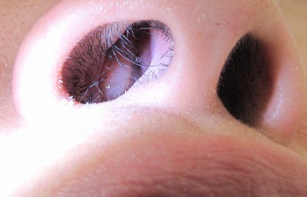 Photo of پولیپ بینی درمان و علائم آن