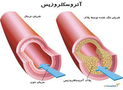 آترواسکلروز (تصلب شرایین)