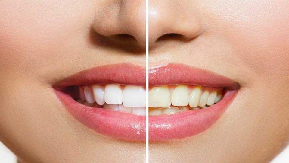 Photo of عواملی که باعث تغییر رنگ دندان می شوند