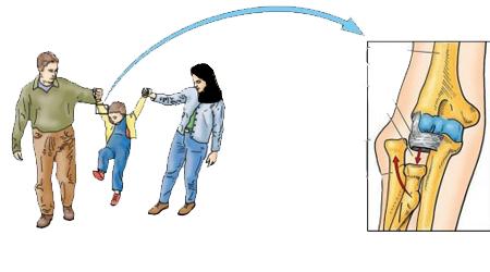 دست کودک را از آرنج نگیرید باعث اسیب به استخوان های دست می شود!