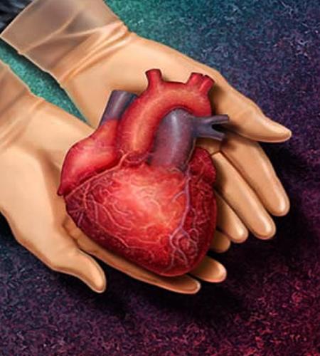 جراحی پیوند قلبی