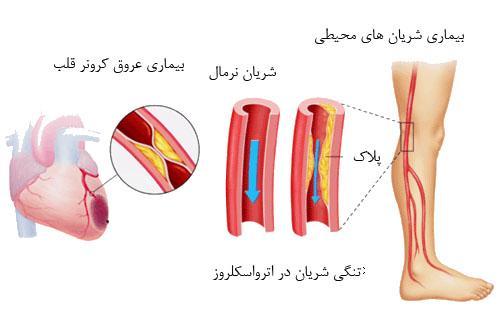 بهترین رژیم غذایی برای تصلب شرائین آترواسکلروز