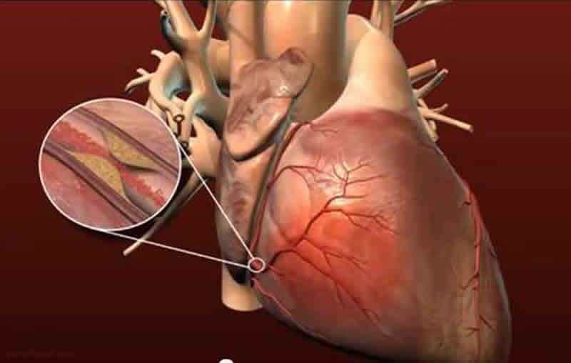 Photo of بیماری عروق کرونر قلب چیست و چگونه دررمان می شود؟