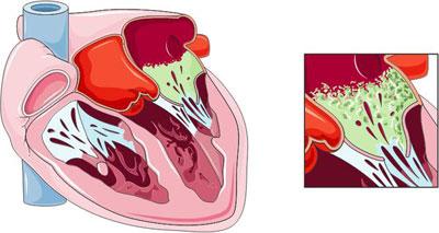 آیا عفونت قلبی مسری است؟