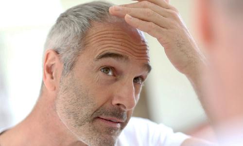 باورهای اشتباه و درست در مورد سفیدی موها