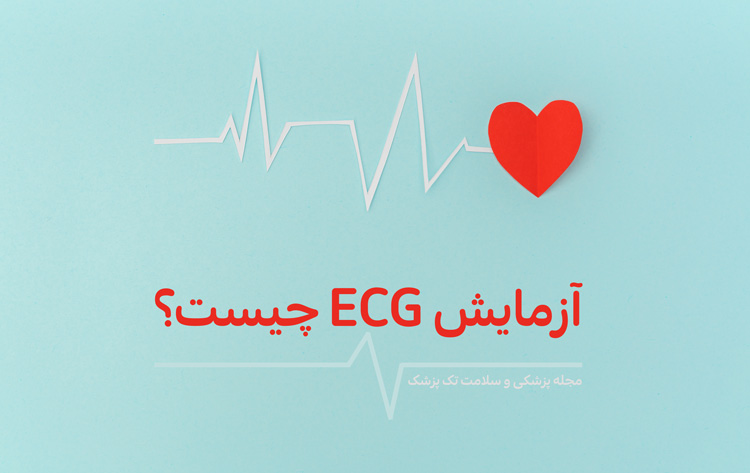 ecg چیست؟
